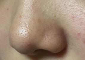 いちご鼻1